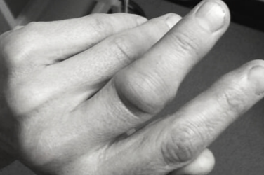 Dislocated Finger – Symptoms, Causes, And Treatment